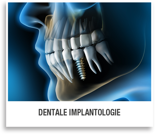 Dentale Implantologie